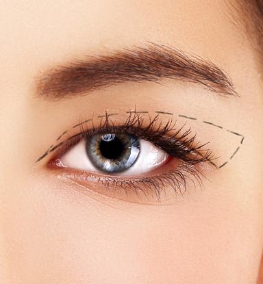 augenlidstraffung Augenlidstraffung / Schlupflider : Beratungsgespräch mit einem Facharzt augenlidkorrektur LP sliderbild7
